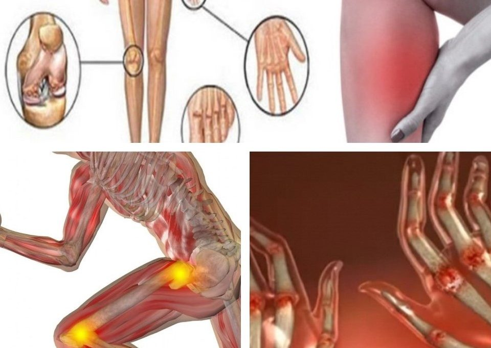 artrita tratament naturist artrita simptome
